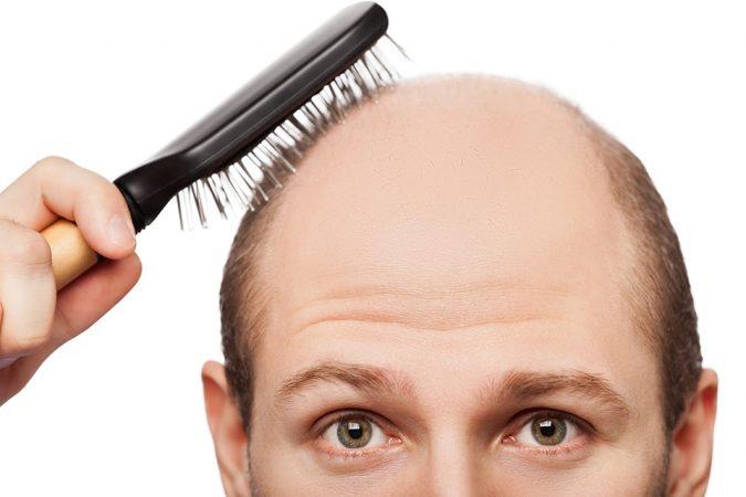 השתלת שיער גוף