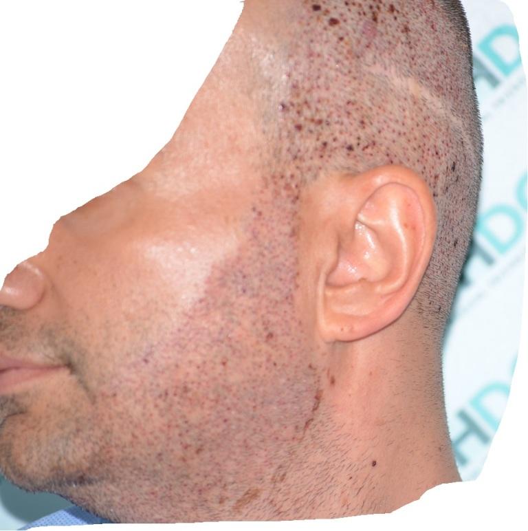 11-Immediately-after-beard-donor_zpsfrhkdqf8-1