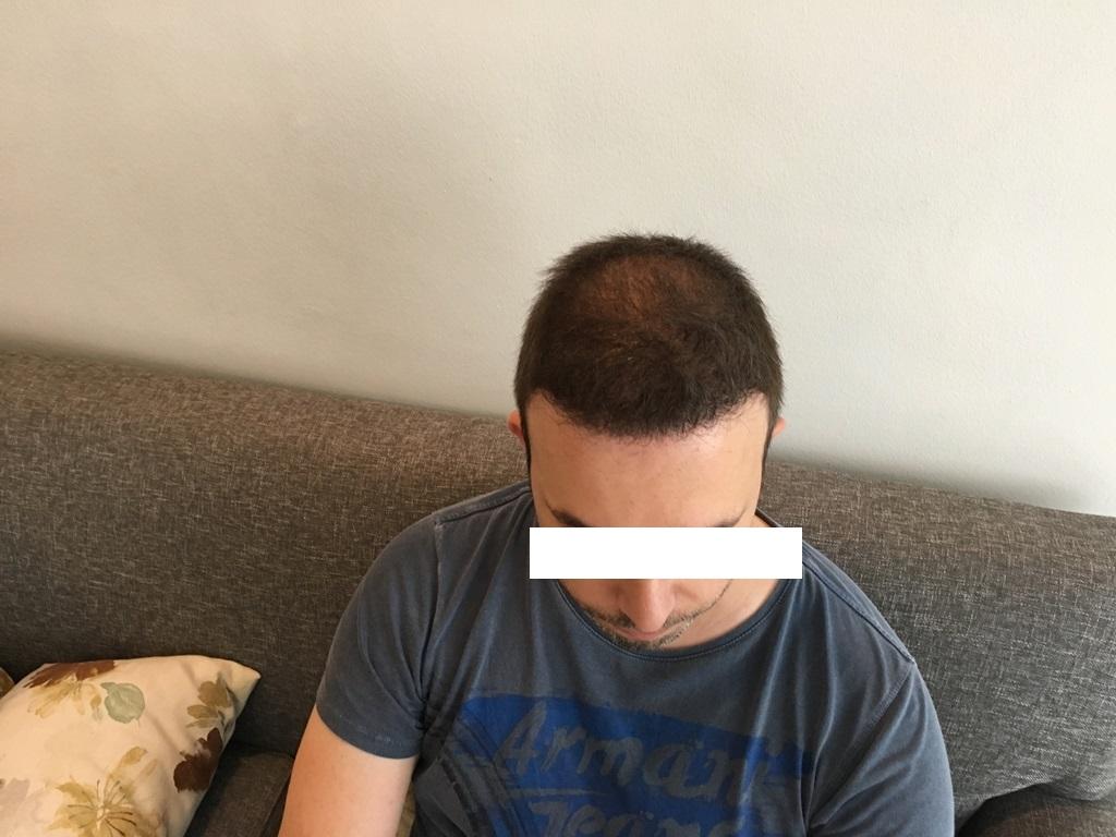 12-13-Months-post-op_zps6a8sazd2