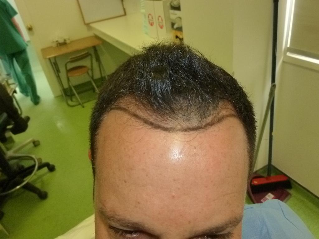 השתלת שיער - תכנון ובניית קו שיער