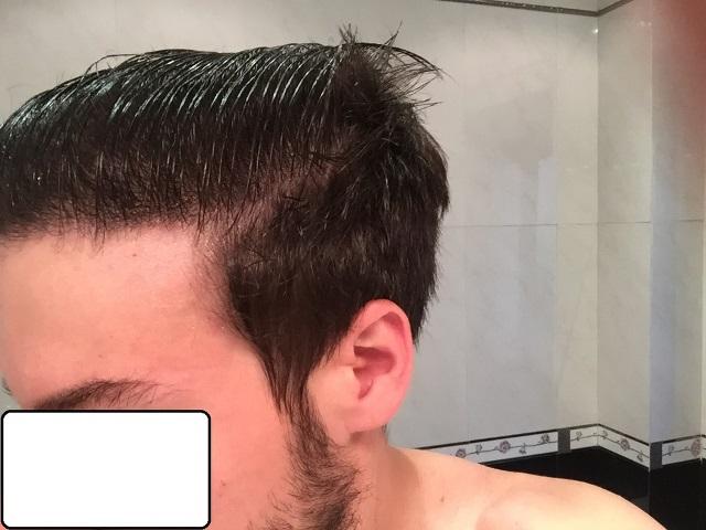 26-months-after-left