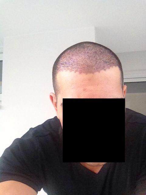 לפני השתלת שיער במרפאת HDC