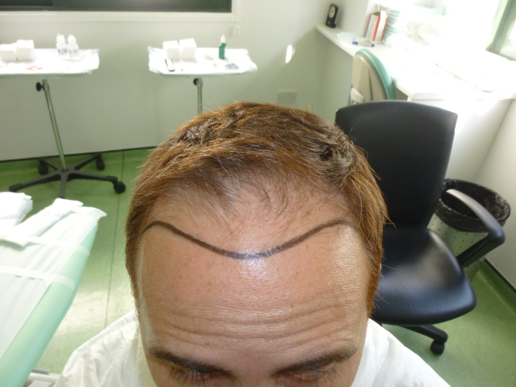 4-Hairline-design-front_zps2v2c60dr
