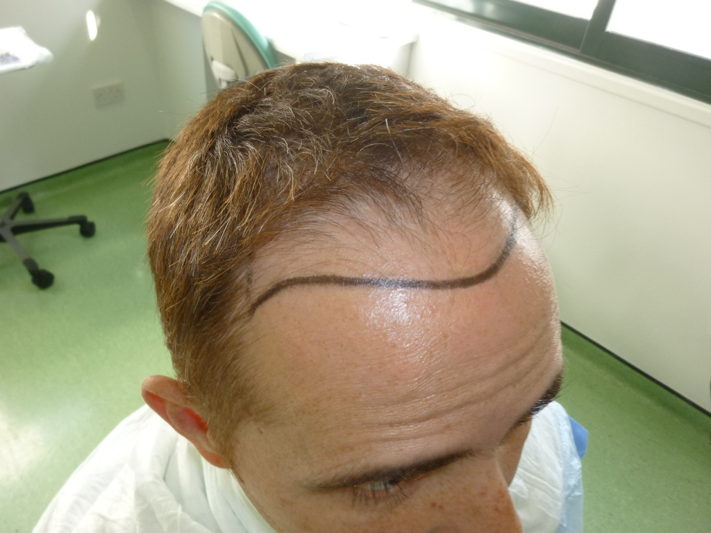 5-Hairline-design-right-side_zpss0j0dbc5