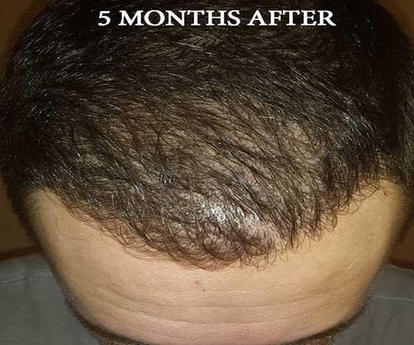 5-months-post-op