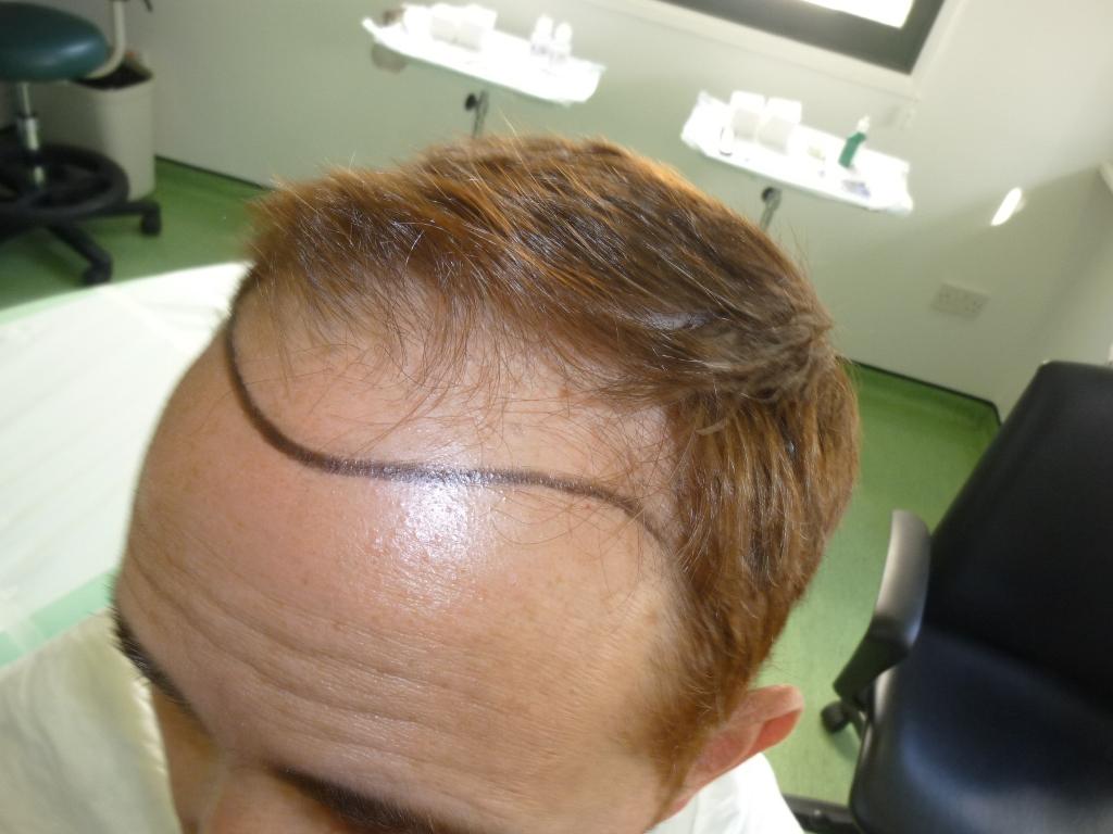 6-Hairline-design-left-side_zps8ivf8idm