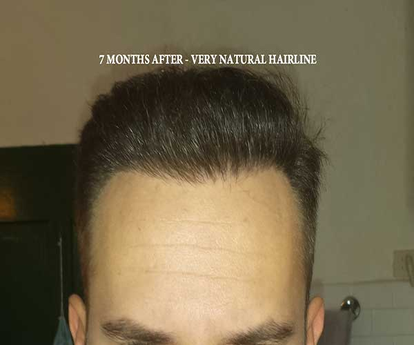 7-months---hairline