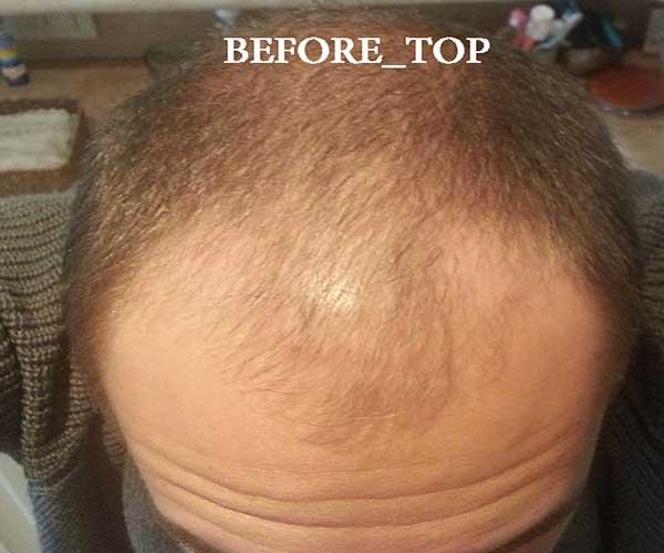 Before-op