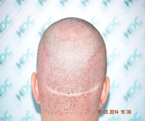 האזור התורם לאחר ההשתלת fue (ניתן לראות צלקת סטריפ מהשתלה קודמת של המטופל )