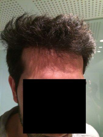לאחר השתלת שיער מוצלחת במרפאת HDC