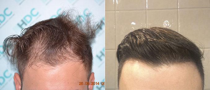 השתלת שיער חלק קדמי 2400 זקיקים