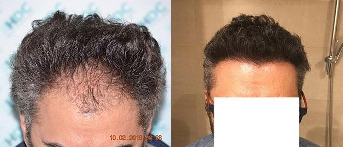 השתלת שיער חלק קדמי 2700 זקיקים