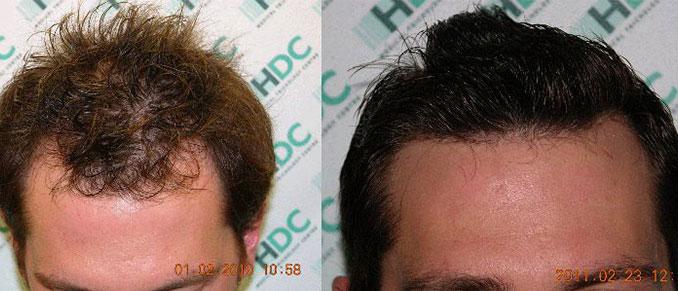 השתלת שיער 2860 זקיקים