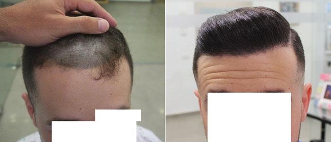 השתלת שיער FUE כמות של 3056 זקיקים