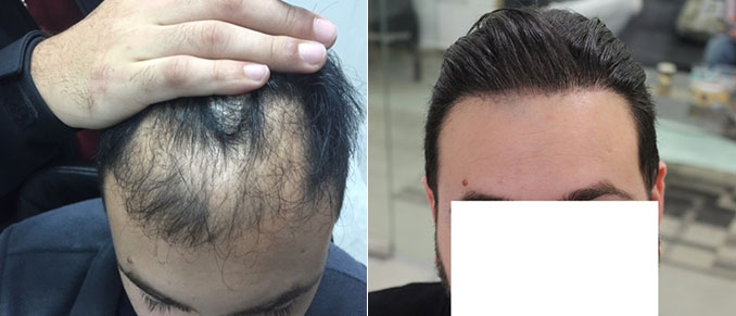 השתלת שיער FUE בכמות של  3008 זקיקים לנורווד 5