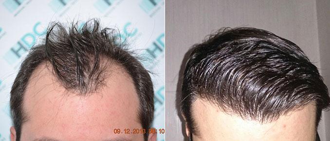 השתלת שיער 3100 זקיקים