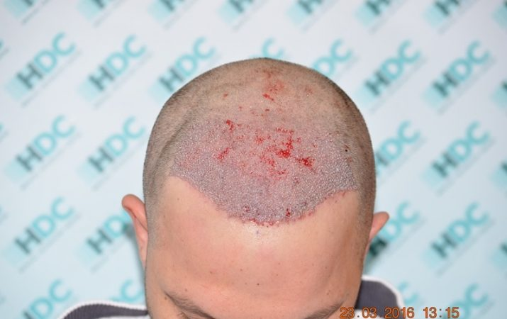 השתלת שיער מיד בסיום התהליך