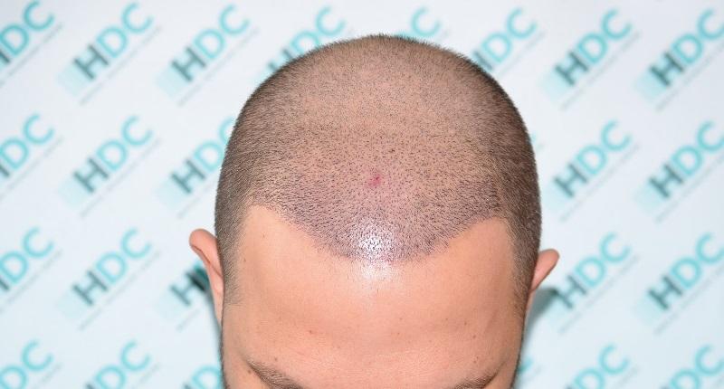 שבוע לאחר השתלת שיער כאשר אין גלדים,סימנים וזיהומים