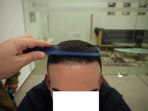 אחרי השתלה שניה קו שיער
