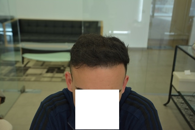 after-ht2-front-hairline