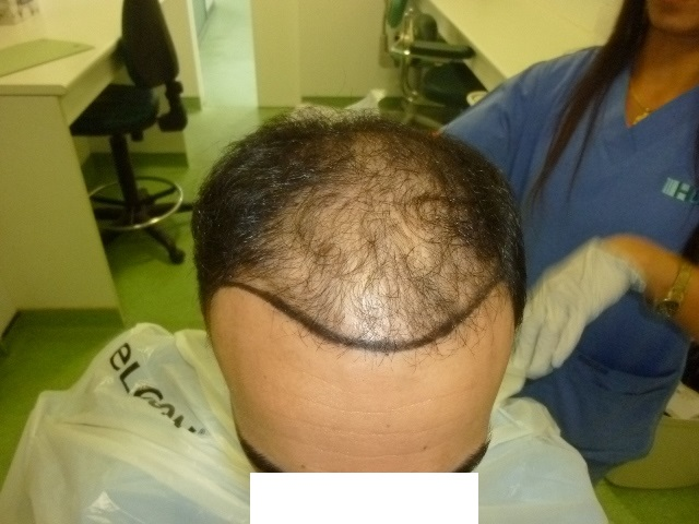 before-hairline