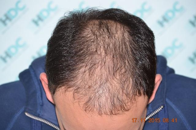 לפני השתלת שיער נורווד 5