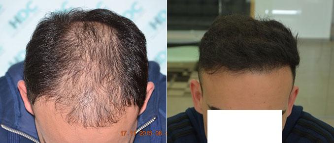 השתלת שיער כמות של 4800 זקיקים - בשני טיפולים עם הפרש של שנה בין טיפול לטיפול