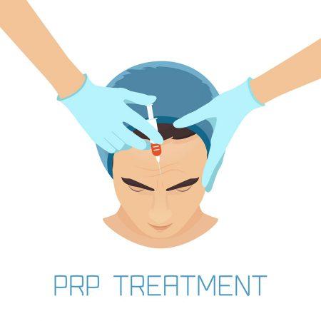 מהו הקשר בין טיפולי prp/f לשיער לבין השתלת שיער?