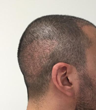 """hdcד""""ר מאראס מהן ההשלכות של טיפול השתלת שיער לא מוצלח?"""